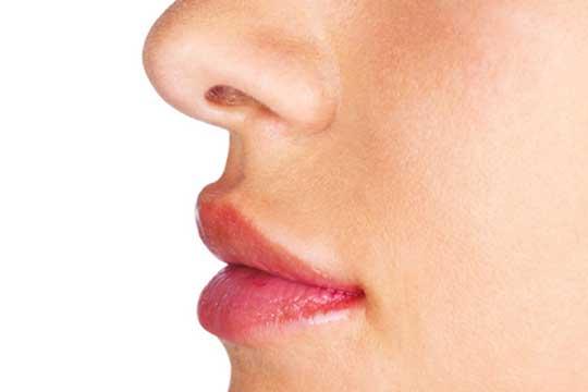 Größere und symmetrische Lippen dank Lippenkorrektur